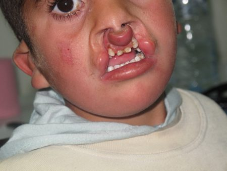 preoperative cleft lip patient
