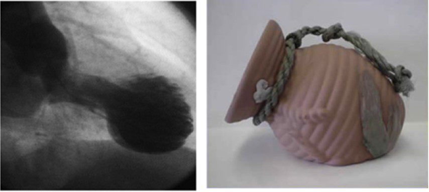 Left: A ventriculogram showing apical ballooning in Takotsubo syndrome. Right: The eponymous traditional takotsubo jug.