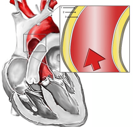 Illustration of location of aortic dissection