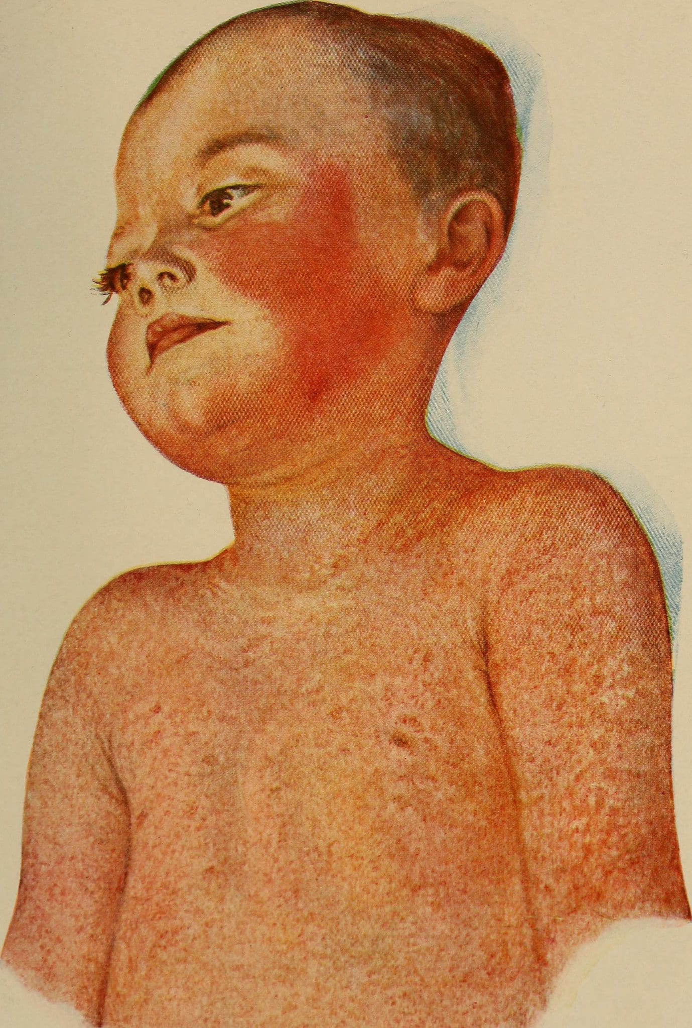 Child suffering scarlet fever