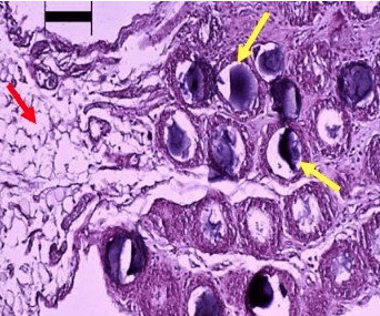 Histology of activated omentum