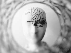 The brain of a manager can be effected by invisible disability